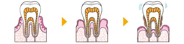 歯周病ってなーに?
