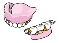 入れ歯の汚れるポイント