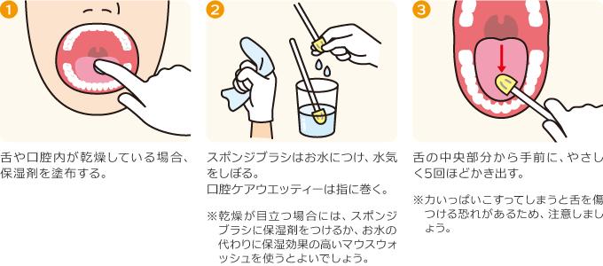 お口の乾燥とだ液の減少