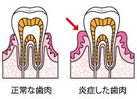 正常な歯肉と炎症した歯肉