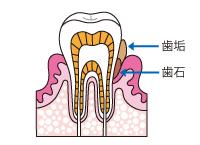 グラグラしている歯