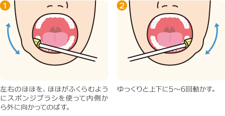 口腔内ストレッチの方法(ほほ)